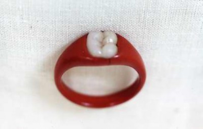 "Plasticine ""engagement"" ring with inset ""molar,"" made by Edmund Kahn, c. 1905."